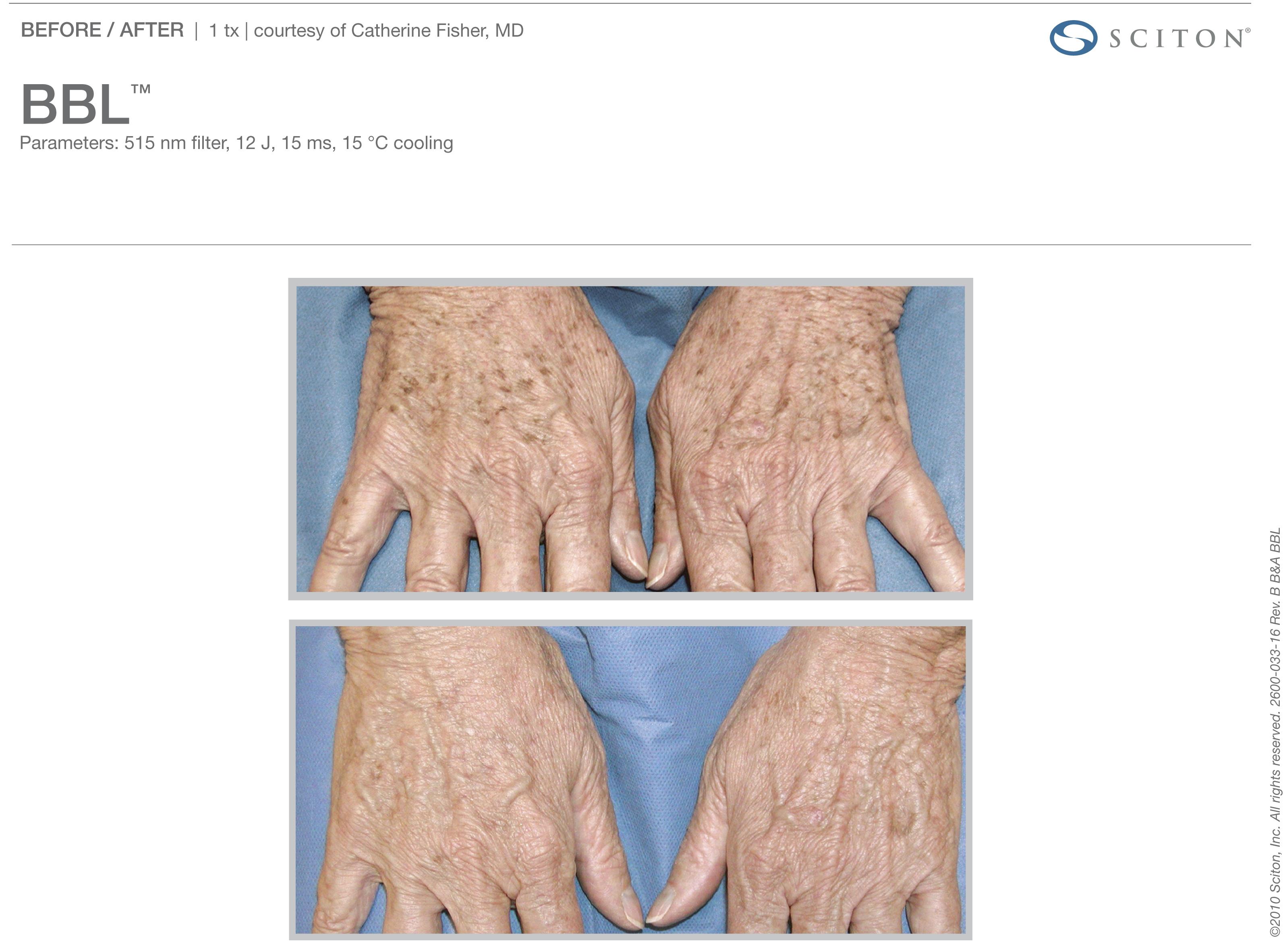 Pigmented Hands