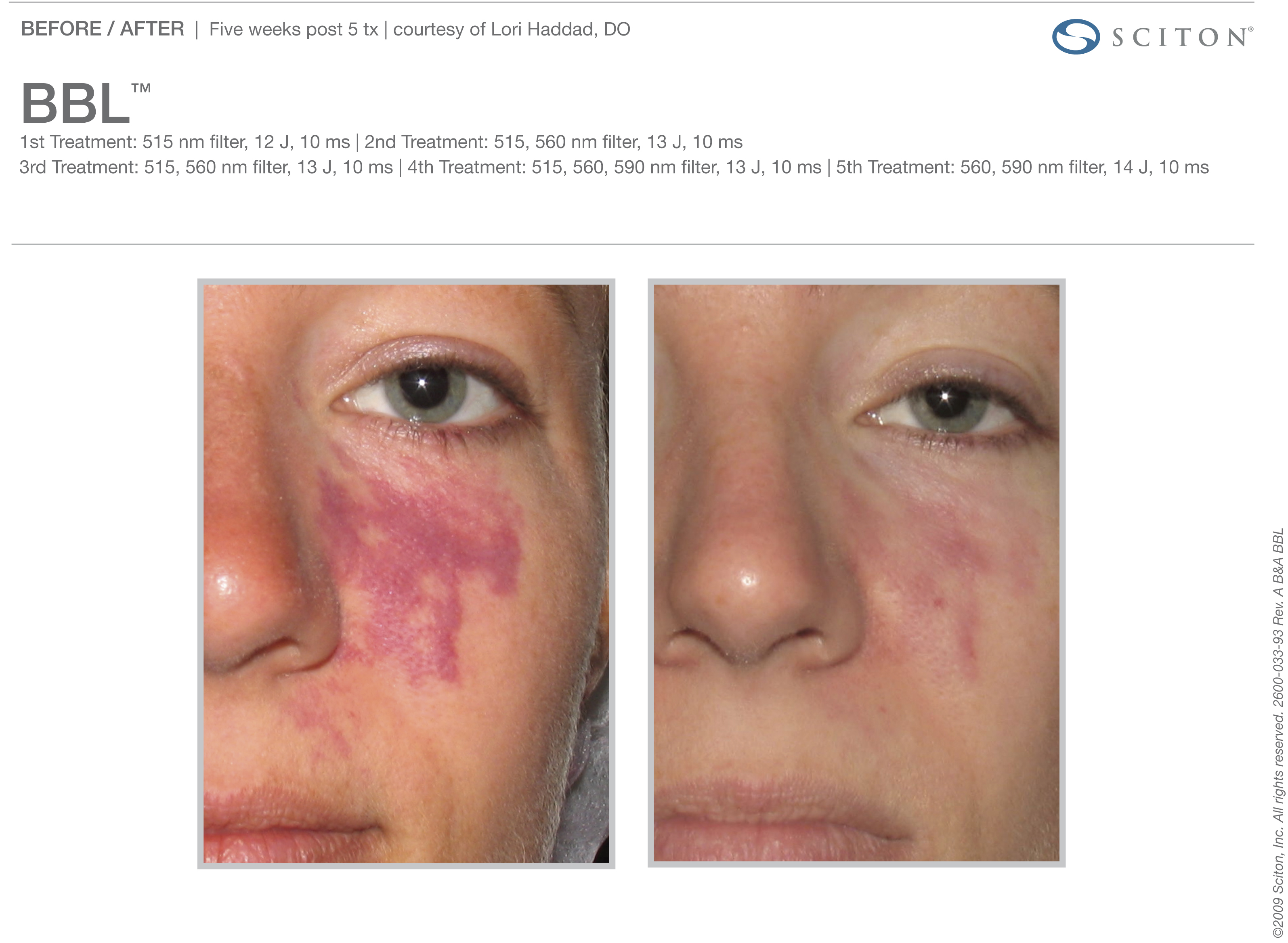 Pigmented Facial Lesions
