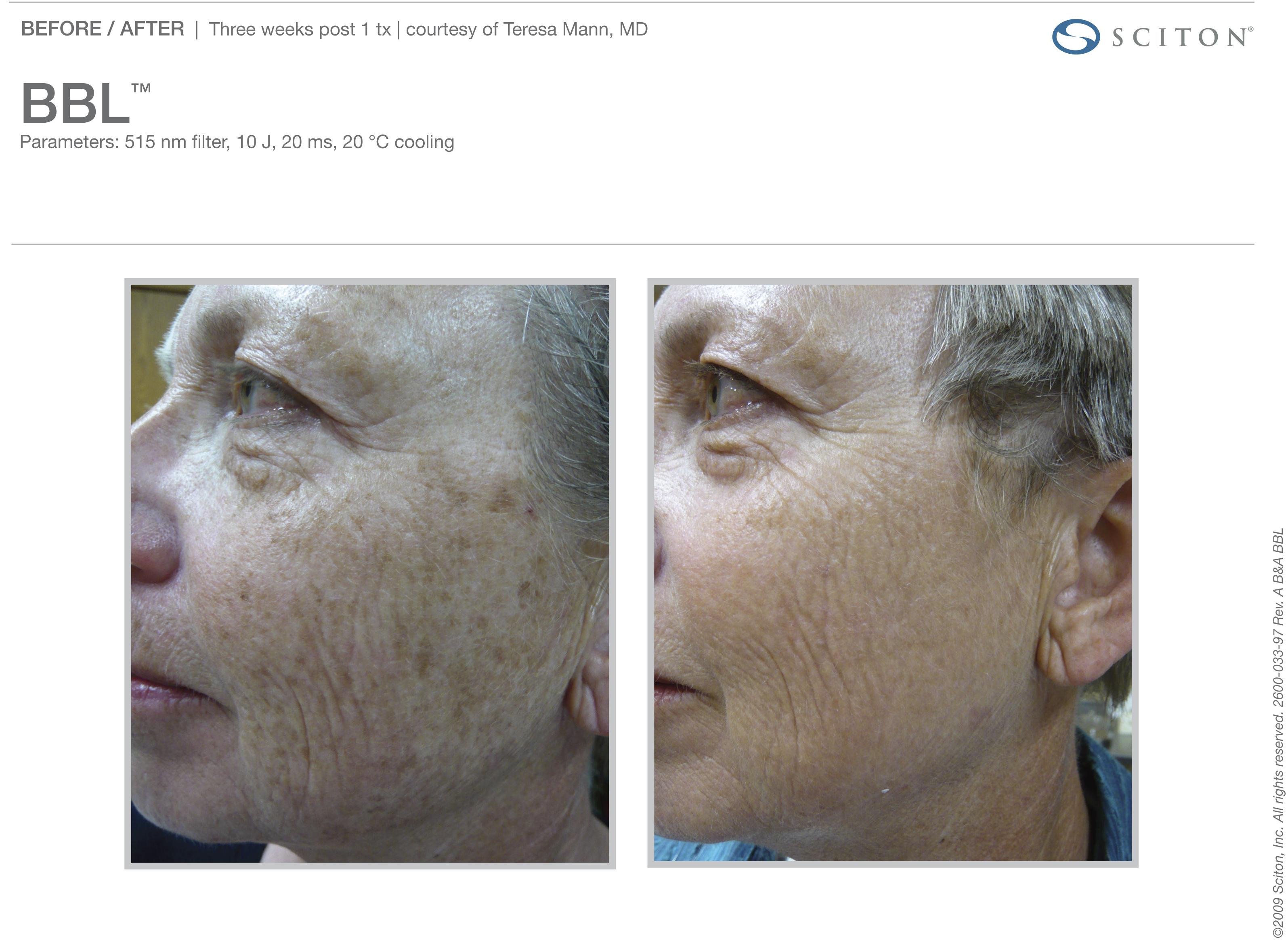 Skin Damage