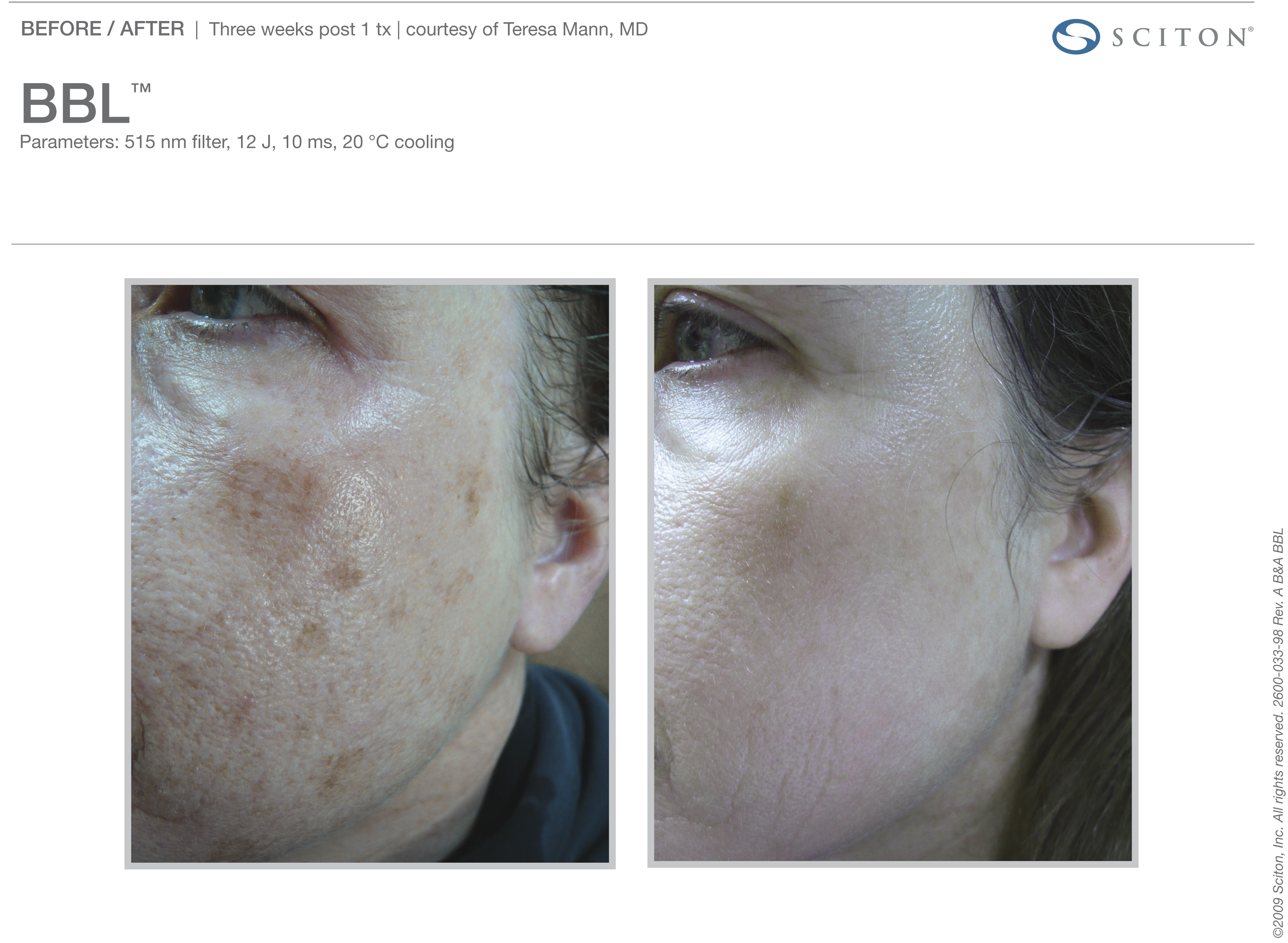 Skin Treatment Results