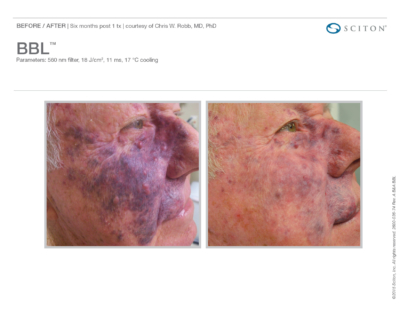 Pigmented Facial Lesions