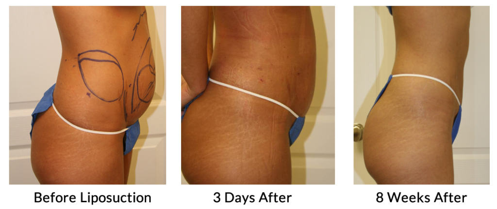 Tumescent Liposuction Treatment before and after