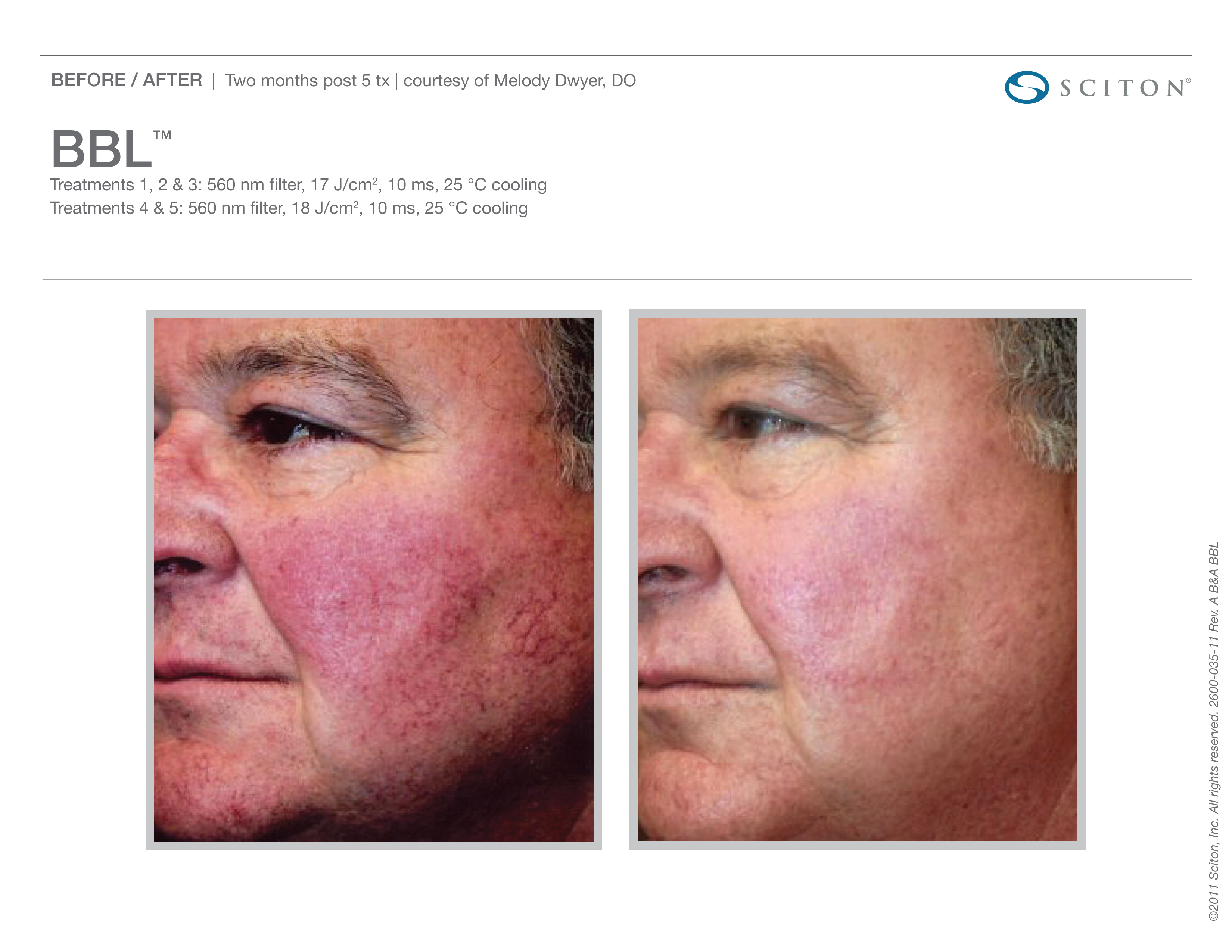 Before and After Blood Vessels Treatment