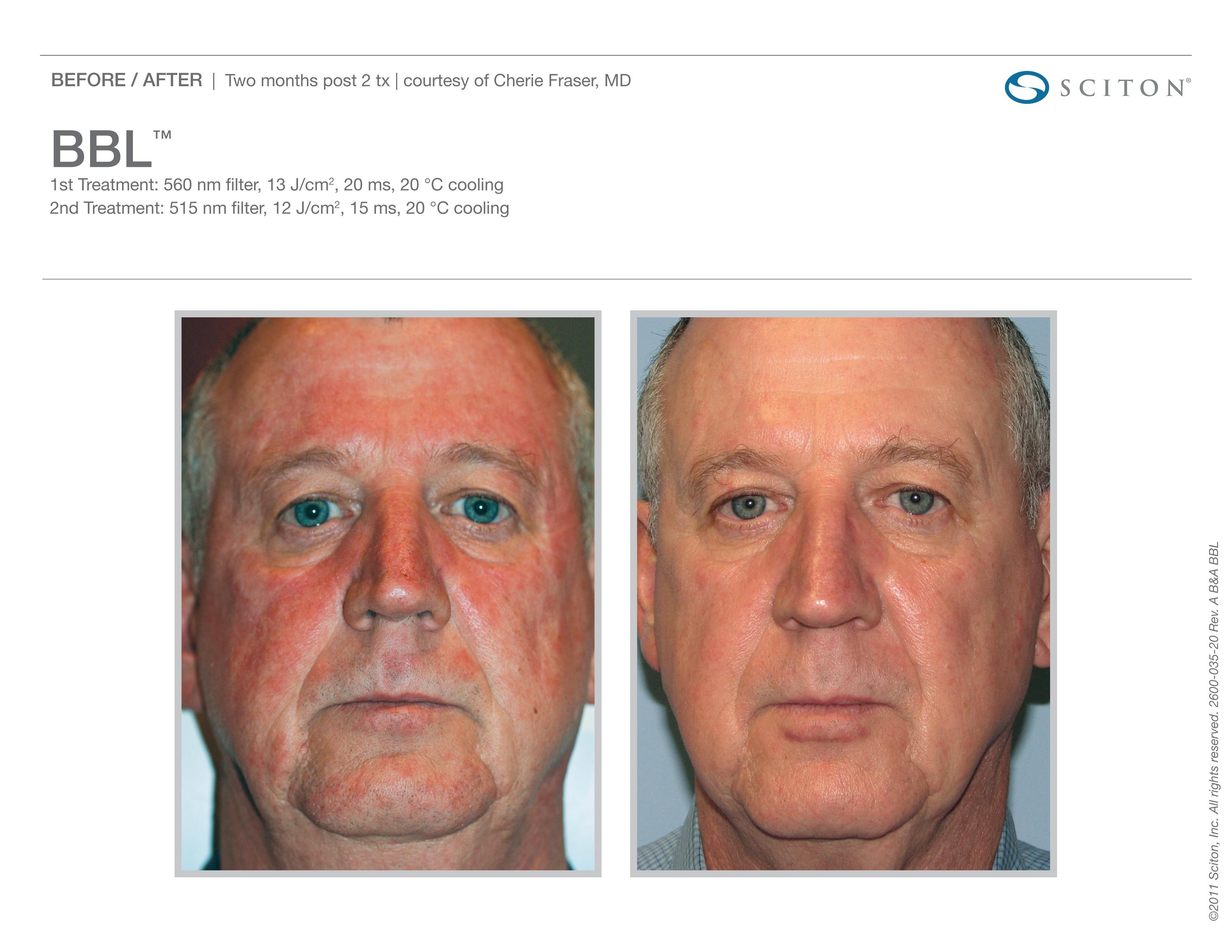 Blood Vessels Treatment - Face