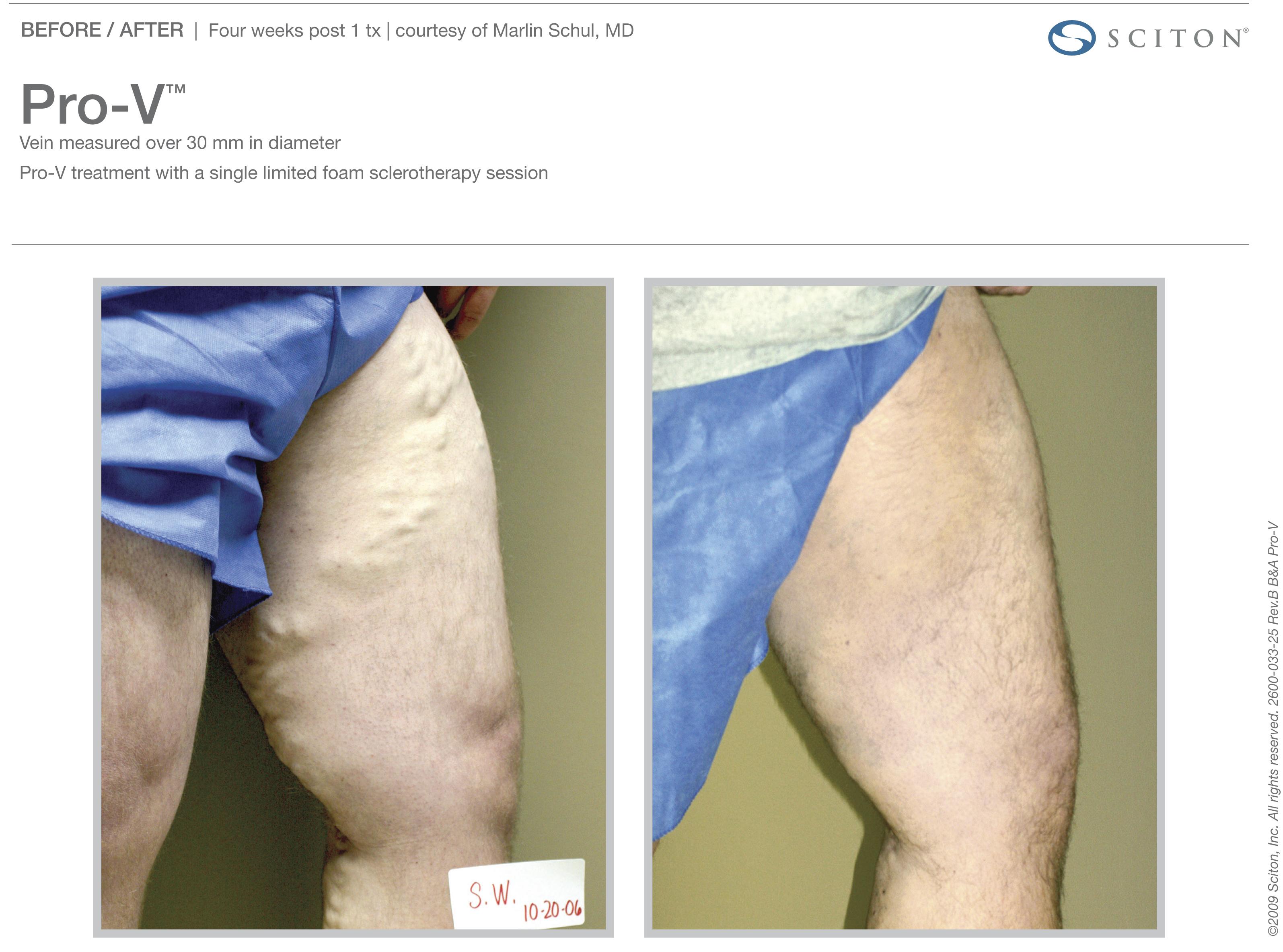 Leg Vessels Treatment