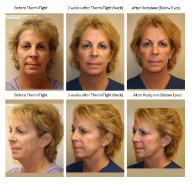 Eye Lift image